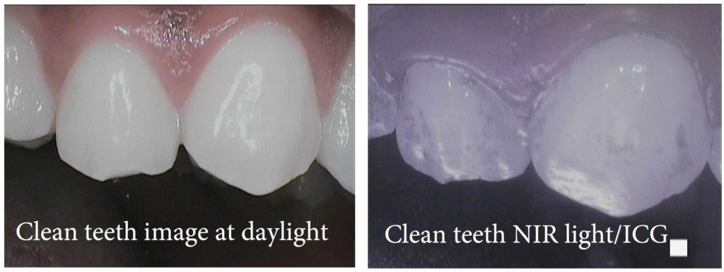 Even clean teeth have dental plaque on them. This can affect the outcome of teeth whitening
